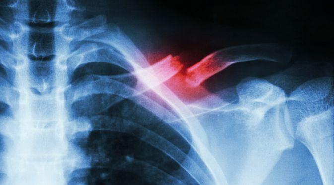 Patah Tulang Selangka - KlikDokter.com (Puwadol Jaturawutthichai/Shutterstock)