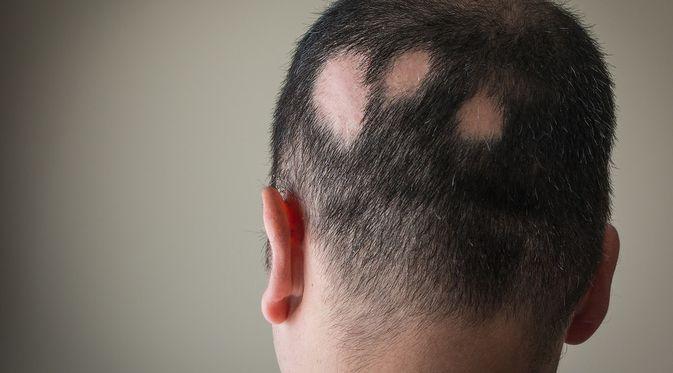 Penyakit Alopecia Areata (Alex Pap/Shutterstock)
