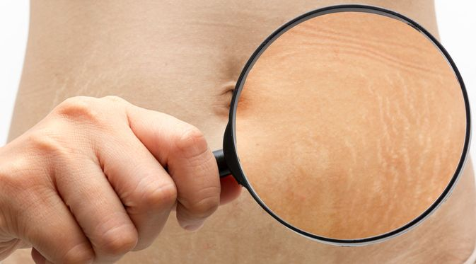 Penyakit Stretch Mark (NamtipStudio/Shutterstock)