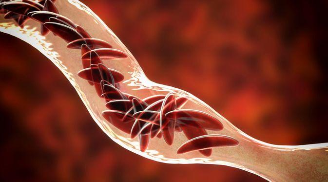 Penyakit Anemia Sel Sabit (Kateryna Kon/Shutterstock)