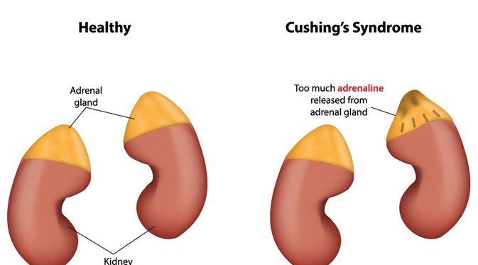 Penyakit Sindrom Cushing - KlikDokter.com (Joshya/Shutterstock)
