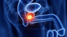 Mencegah Kanker Prostat dengan Makan Jamur, Efektifkah? (Sebastian-Kaulitzki/Shutterstock)