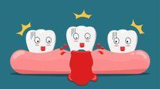 Benarkah Gusi Berdarah Bisa Berujung pada Kanker? (Nawamin/Shutterstock)