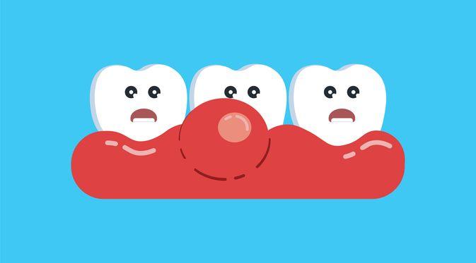 Penyakit Tumor Rongga Mulut (Pashkalian Bohdan/Shutterstock)