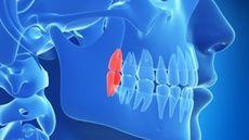 Ketika Gigi Berjumlah Lebih dari Normal