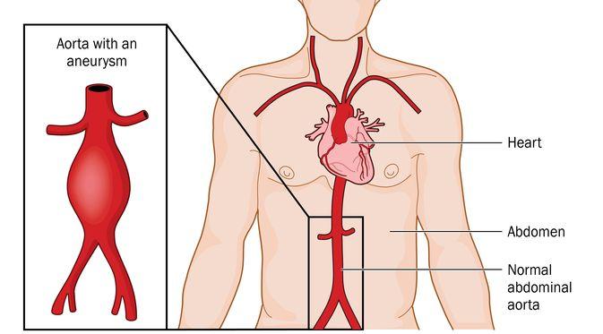 Penyakit Aneurisma aorta (Blamb/Shutterstock)