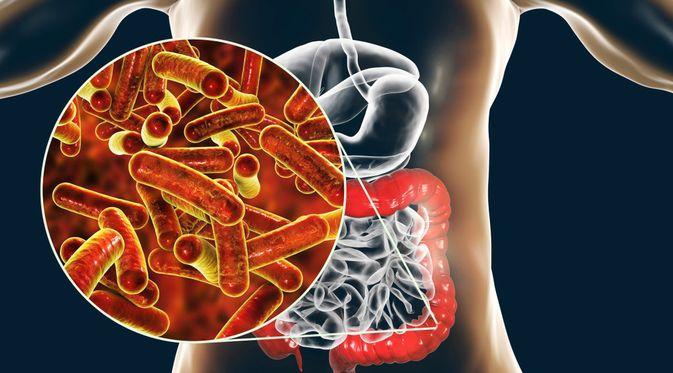 Penyakit Shigellosis (Kateryna Kon/Shutterstock)