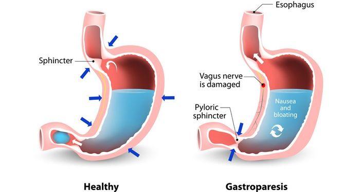 Penyakit Gastroparesis - KlikDokter.com (Designua/Shutterstock)