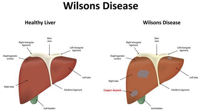 Penyakit Wilson