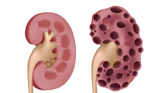 Penyakit Ginjal Polikistik - KlikDokter.com (Alila Medical Media/Shutterstock)