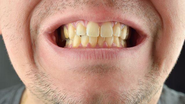 Hasil gambar untuk gigi kuning