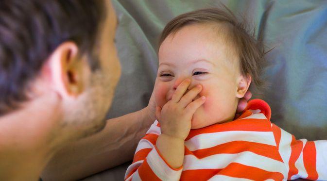 Penyakit Sindrom Aarskog (Tatiana Dyuvbanova/Shutterstock)