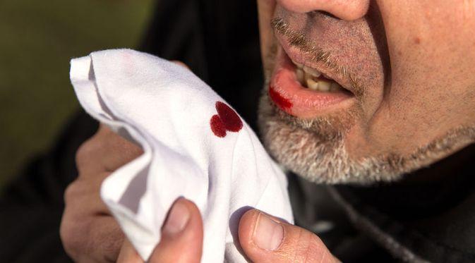 Batuk Darah