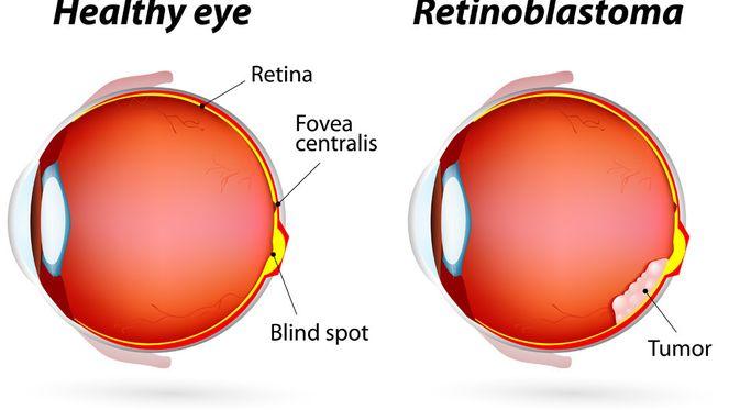 Penyakit Retinoblastoma - KlikDokter.com (Designua/Shutterstock)