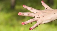 Tangan Kesemutan, Perlukah Khawatir Jika Sering Terjadi? (Tankist276/Shutterstock)