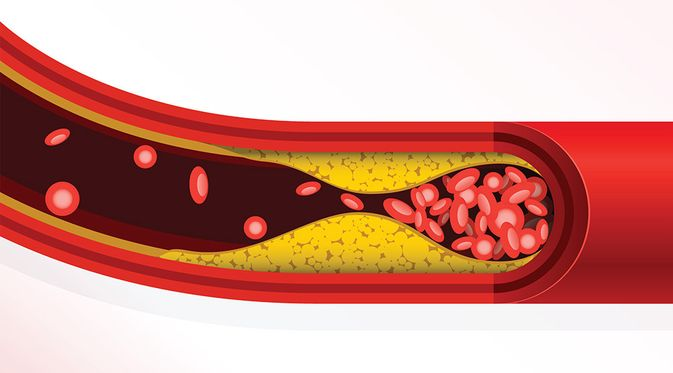 Hiperkolesterolemia -KlikDokter.com (GoMixer/Shutterstock)