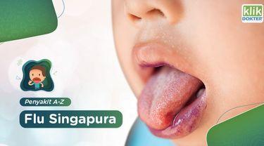 Flu Singapura adalah penyakit yang ditandai dengan munculnya luka pada mulut, lengan dan kaki. Penyakit ini biasa terjadi pada anak-anak. Apa saja gejalanya? Simak selengkapnya di video ini.