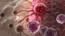 8 Cara Turunkan Faktor Risiko Kanker (Jovan-Vitanovski/Shutterstock)
