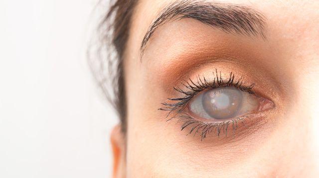 5 Tanda Tersembunyi Anda Terkena Katarak (Sruilk/Shutterstock)