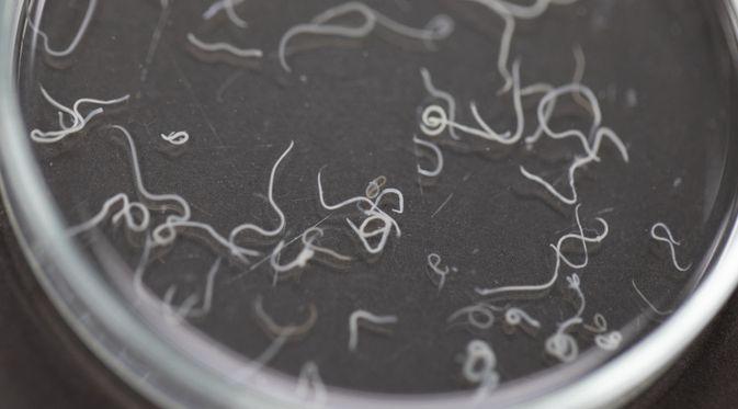 Penyakit Askariasis (Rattiya Thongdumhyu/Shutterstock)
