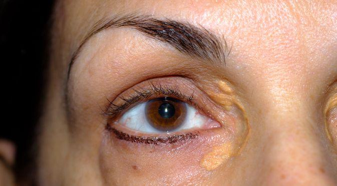 Penyakit Xanthelasma (Douglas Olivares/Shutterstock)
