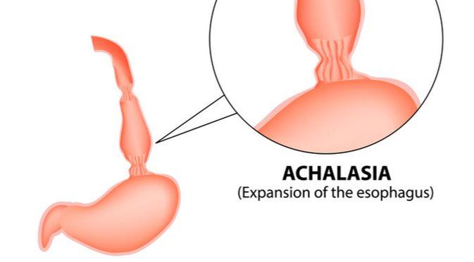 Penyakit Achalasia (Timonina/Shutterstock)