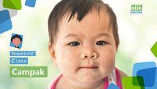 Menurut WHO, campak merupakan salah satu penyebab utama anak meninggal di dunia. Bagaimana pencegahan dan cara penanganannya? Simak selengkapnya di video ini.