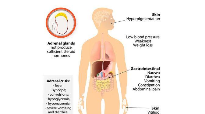 Penyakit Addison - KlikDokter.com (Designua/Shutterstock)