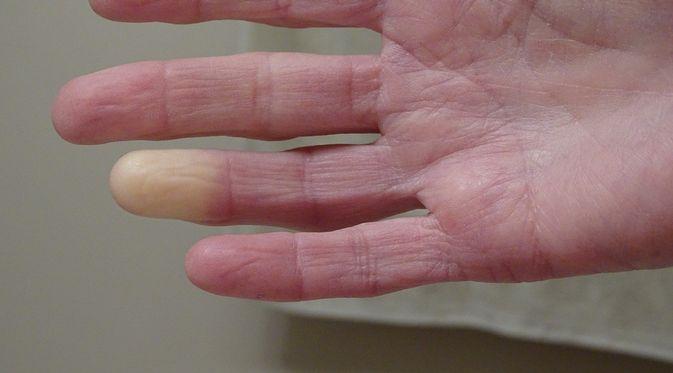 Penyakit Buerger - KlikDokter.com (Barb Elkin/Shutterstock)