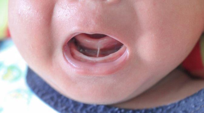 Tongue-tie (Ankyloglossia)