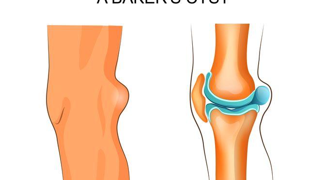 Penyakit Kista Baker (Artemida Psy/Shutterstock)