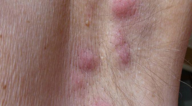 Hidradenitis Suppurativa - KlikDokter.com (Guentermanaus/Shutterstock)