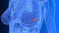 Kanker Payudara HER2 Positif, Bisakah Disembuhkan? (Sebastian-Kaulitzki/shutterstock)