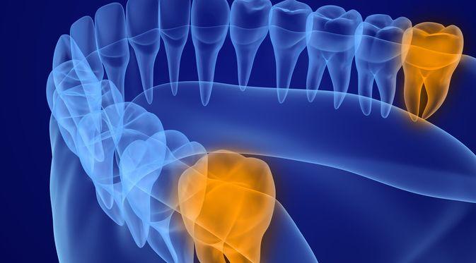 Penyakit Gigi Bungsu (Alex Mit/Shutterstock)