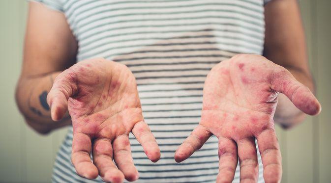 Penyakit Penyakit Coxsackie (Lolostock/Shutterstock)